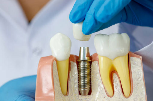 Crowns and Bridges for Dental Implants in Centralia, WA - Cascade Family Dental Center