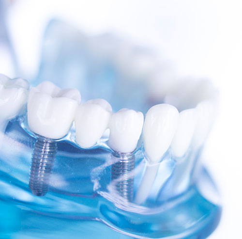 Fully Guided Surgical Implant Placement in Centralia, WA - Cascade Family Dental Center