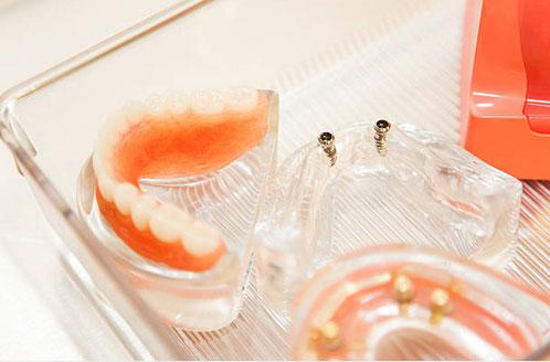 Full and Partial Dentures in Centralia, WA - Cascade Family Dental Center